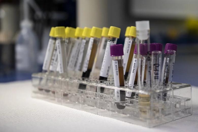 análisis de orina o de sangre marihuana thc