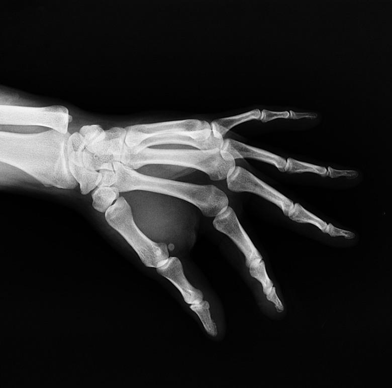 legal CBD es un excelente antiinflamatorio para calmar la artritis